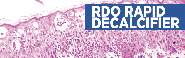RDO Rapid Decalcifier